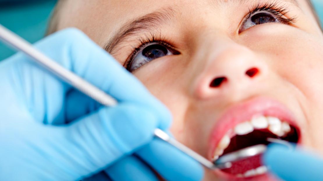 sigillatura dei solchi dei molari odontoiatria preventiva pediatrica