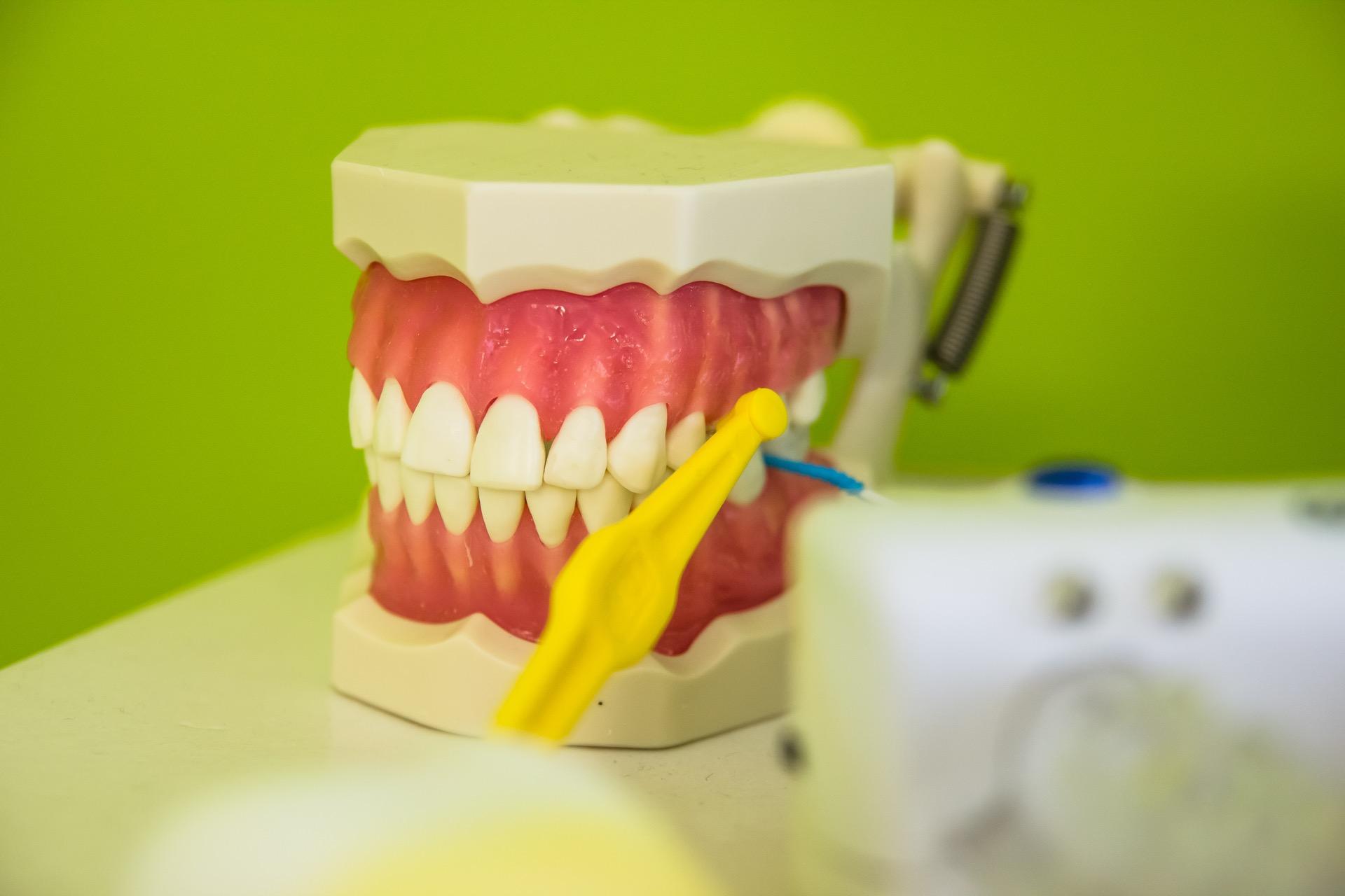 pulizia denti messina
